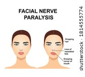 paralysis of the facial nerve.... | Shutterstock .eps vector #1814555774
