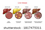 Liver Diseases. Stages Of Liver ...
