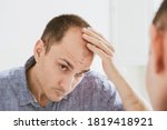 Male pattern hair loss problem...