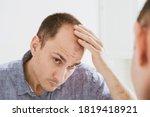 Male pattern hair loss problem...