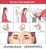 Dix Hallpike Maneuver Vector...