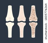 Osteoporosis Disease Stages....