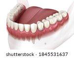 Removable Partial Denture ...
