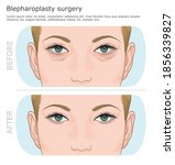 before and after blepharoplasty ...   Shutterstock .eps vector #1856339827