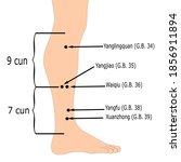 Acupuncture Gall Bladder...
