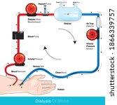 hemodialysis or dialysis of... | Shutterstock .eps vector #1866339757