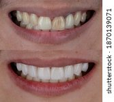Small photo of Before and after shot of smile makeover by dental ceramic veneer, porcelain laminated veneers.