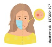 maskne concept. acne caused... | Shutterstock .eps vector #1872004807