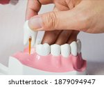 Hand Extracting A Molar Tooth ...