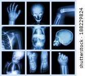 Collection x ray part of child...