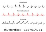 Set Lines Heartbeat Normal ...