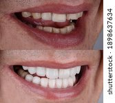 Small photo of Before and after of smile makeover treatment with ceramic crown and porcelain laminated veneers.