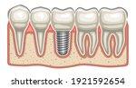 vector illustration of dental... | Shutterstock .eps vector #1921592654