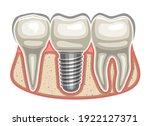 vector illustration of dental... | Shutterstock .eps vector #1922127371