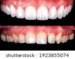 Perfect Smile Before And After...