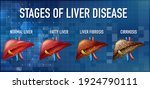 stages of liver disease leading ... | Shutterstock .eps vector #1924790111