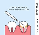 teeth scaling icon   scaling... | Shutterstock .eps vector #1927197761