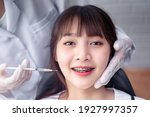 Small photo of Female plastic surgeon doctor injecting syringe of Botox to enhance female appearance of Asian female patient customer with braces happy smiling, hospital clinical surgery room office appointment room