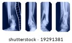 fractured legs collection | Shutterstock . vector #19291381