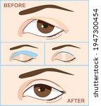 blepharoplasty of eyelid....   Shutterstock .eps vector #1947300454