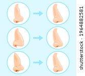 cartoon rhinoplasty surgery....   Shutterstock .eps vector #1964882581