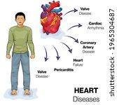 illustration of heart diseases  ... | Shutterstock .eps vector #1965304687