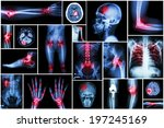 collection x ray multiple... | Shutterstock . vector #197245169
