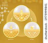 hyaluronic acid before and...   Shutterstock .eps vector #1975999841
