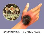 Cutaneous Mucormycosis  A...