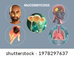 Clinical Forms Of Mucormycosis  ...