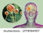 Brain Mucormycosis  A Brain...