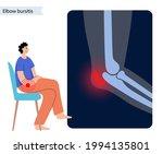 olecranon joint bursitis.... | Shutterstock .eps vector #1994135801