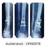 broken leg collection   x ray... | Shutterstock . vector #19960378