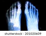 X Ray Photograph Of Human Foot