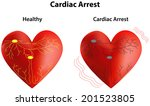 cardiac arrest diagram | Shutterstock .eps vector #201523805