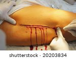 incision 3 | Shutterstock . vector #20203834