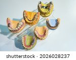 Plaster Models Of Dental...
