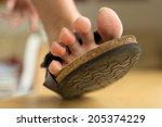 Dry Feet With Skin Peeling Off...