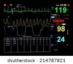 ekg monitor in icu unit show... | Shutterstock . vector #214787821