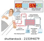 how blood dialysis works ...