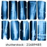broken leg collection   x ray...   Shutterstock . vector #21689485