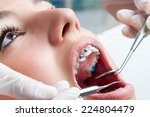 dentist hands working on young...   Shutterstock . vector #224804479