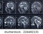 x ray head and brain | Shutterstock . vector #226682131