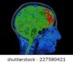mri image of head showing brain | Shutterstock . vector #227580421