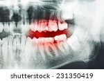 Decayed Tooth Pain On X Ray