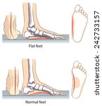 flat and normal feet. | Shutterstock .eps vector #242733157