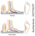 flat and normal feet. | Shutterstock .eps vector #242733157
