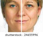 correction of wrinkles on half... | Shutterstock . vector #24655996