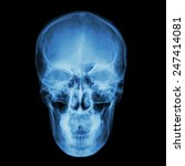 Small photo of X-ray skull and Stroke ( cerebrovascular accident (CVA) )
