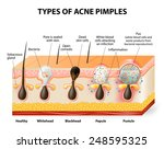 types of acne pimples. healthy... | Shutterstock .eps vector #248595325